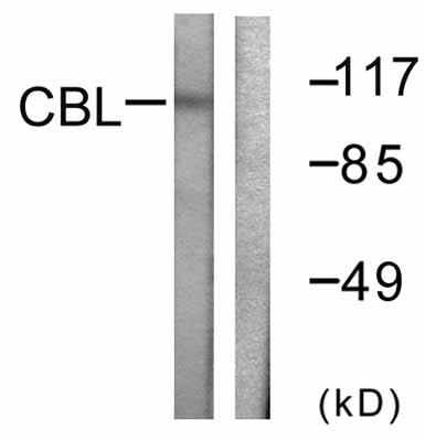 Western blot - CBL antibody (ab58506)