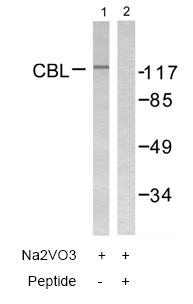 Western blot - CBL antibody (ab58507)