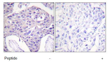 Immunohistochemistry (Paraffin-embedded sections) - FOXO1 + FOX3 + FOX4 antibody (ab58518)