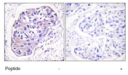 Immunohistochemistry (Paraffin-embedded sections) - GRK2 antibody (ab58521)