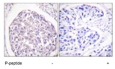 Immunohistochemistry (Paraffin-embedded sections) - Insulin Receptor (phospho Y1355) antibody (ab58525)
