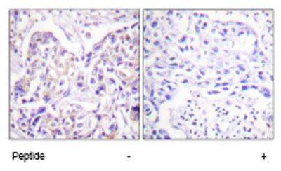 Immunohistochemistry (Paraffin-embedded sections) - IRS1 antibody (ab58527)