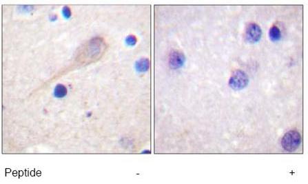 Immunohistochemistry (Paraffin-embedded sections) - Parkin antibody (ab58541)
