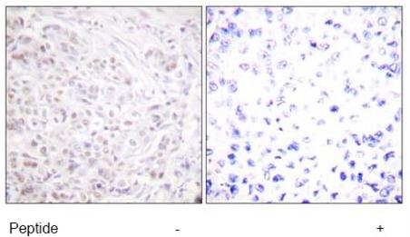 Immunohistochemistry (Formalin/PFA-fixed paraffin-embedded sections) - Anti-Histone H2A antibody (ab58550)