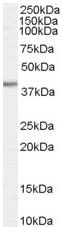 Western blot - Biglycan antibody (ab58562)
