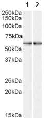 Western blot - Smoothened antibody (ab58591)