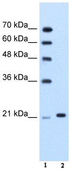 Western blot - TRIM26 antibody (ab58606)