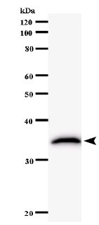 Western blot - TRIOBP antibody [2438C1a] (ab58638)