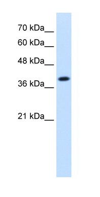Western blot - IDH3A antibody (ab58641)