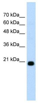 Western blot - FBXO25 antibody (ab58784)