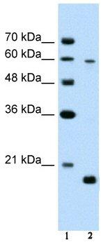 Western blot - SLC38A4 antibody (ab58785)