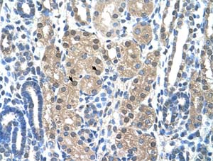 Immunohistochemistry (Formalin/PFA-fixed paraffin-embedded sections) - Anti-Granzyme H antibody (ab58852)