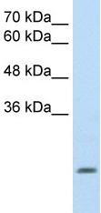 Western blot - ALDH4A1 antibody (ab59011)