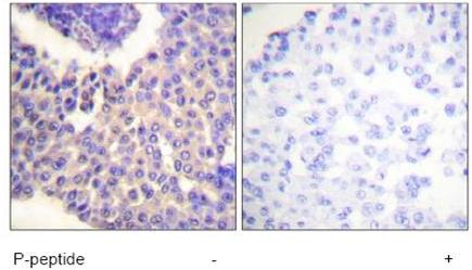 Immunohistochemistry (Paraffin-embedded sections) - beta Arrestin 1 (phospho S412) antibody (ab59172)