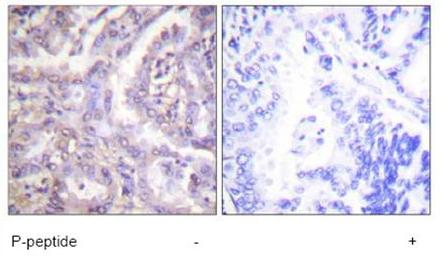 Immunohistochemistry (Paraffin-embedded sections) - TBC1D4 (phospho T642) antibody (ab59173)