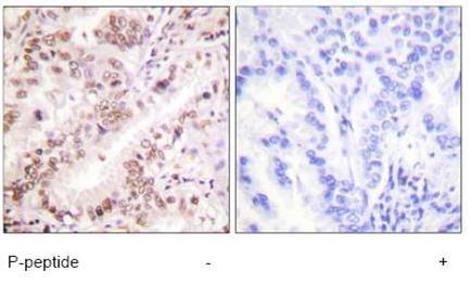 Immunohistochemistry (Paraffin-embedded sections) - Estrogen Receptor alpha (phospho Y537) antibody (ab59177)