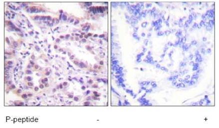 Immunohistochemistry (Paraffin-embedded sections) - ERF (phospho T526) antibody (ab59178)