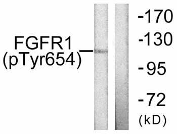 Western blot - FGFR1 (phospho Y654) antibody (ab59194)