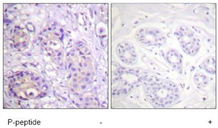 Immunohistochemistry (Paraffin-embedded sections) - IKK beta (phospho Y199) antibody (ab59195)