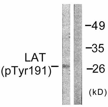 Western blot - LAT (phospho Y191) antibody (ab59197)