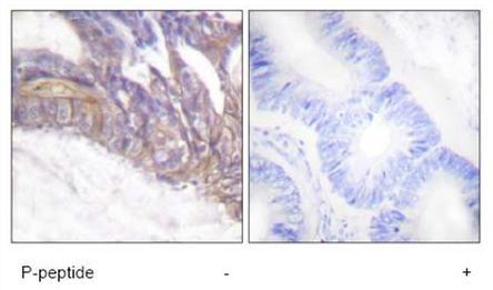 Immunohistochemistry (Paraffin-embedded sections) - LAT (phospho Y191) antibody (ab59197)