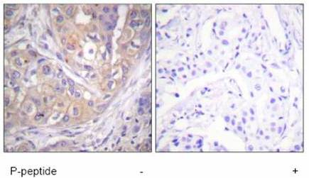 Immunohistochemistry (Paraffin-embedded sections) - Lck (phospho Y505) antibody (ab59198)