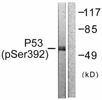 Western blot - p53 (phospho S392) antibody (ab59207)