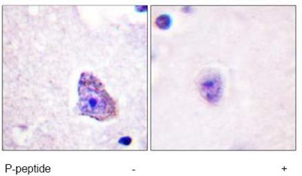 Immunohistochemistry (Paraffin-embedded sections) - Anti-P70 S6 Kinase alpha (phospho T229) antibody (ab59208)
