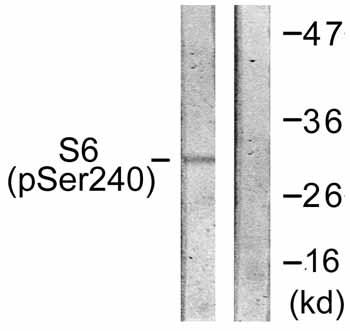 Western blot - S6K (phospho S240) antibody (ab59228)