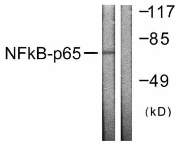 Western blot - Anti-NF-kB p65 antibody (ab59238)