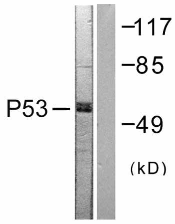 Western blot - p53 antibody (ab59243)