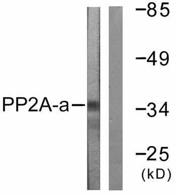 Western blot - Anti-PP2A alpha + beta antibody (ab59255)