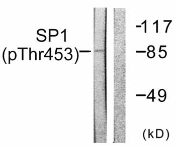 Western blot - SP1 (phospho T453) antibody (ab59257)
