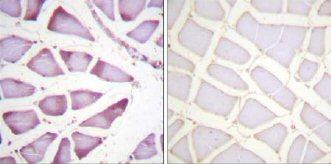 Immunohistochemistry (Paraffin-embedded sections) - RPS6 antibody (ab59261)