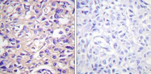 Immunohistochemistry (Paraffin-embedded sections) - Thymidine Kinase  (phospho S13) antibody (ab59266)