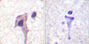 Immunohistochemistry (Paraffin-embedded sections) - Synapsin I antibody (ab59268)