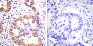 Immunohistochemistry (Paraffin-embedded sections) - Tuberin (phospho S939) antibody (ab59269)