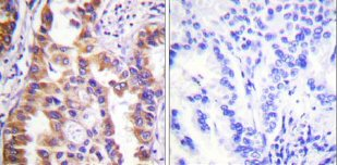 Immunohistochemistry (Paraffin-embedded sections) - Tuberin antibody (ab59273)