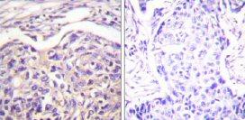 Immunohistochemistry (Paraffin-embedded sections) - Tuberin antibody (ab59275)