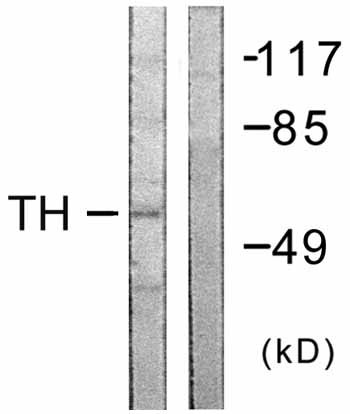 Western blot - Tyrosine Hydroxylase antibody (ab59276)