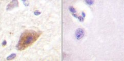 Immunohistochemistry (Paraffin-embedded sections) - Tyrosine Hydroxylase antibody (ab59276)