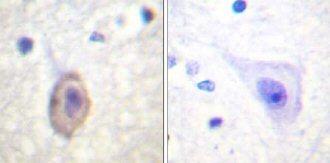 Immunohistochemistry (Paraffin-embedded sections) - VEGF Receptor 1 antibody (ab59277)