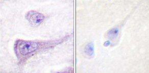 Immunohistochemistry (Paraffin-embedded sections) - WASP  (phospho Y290) antibody (ab59278)