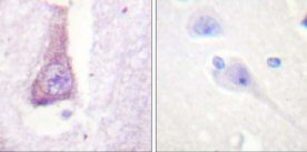 Immunohistochemistry (Paraffin-embedded sections) - WASP  antibody (ab59279)