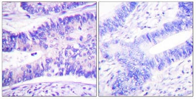 Immunohistochemistry (Paraffin-embedded sections) - WAVE 1 (phospho Y125) antibody (ab59280)