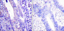 Immunohistochemistry (Paraffin-embedded sections) - WAVE 1 antibody (ab59281)