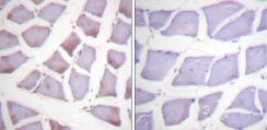 Immunohistochemistry (Paraffin-embedded sections) - XIAP antibody (ab59282)