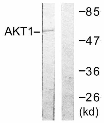 Western blot - AKT1 antibody (ab59285)