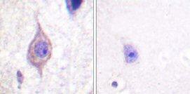 Immunohistochemistry (Paraffin-embedded sections) - ALK antibody (ab59286)