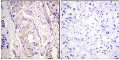 Immunohistochemistry (Paraffin-embedded sections) - MEK1 antibody (ab59294)